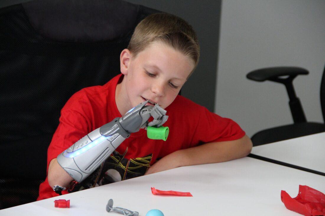 open-bionics-open-source-3d-printed-bionic-hand-01