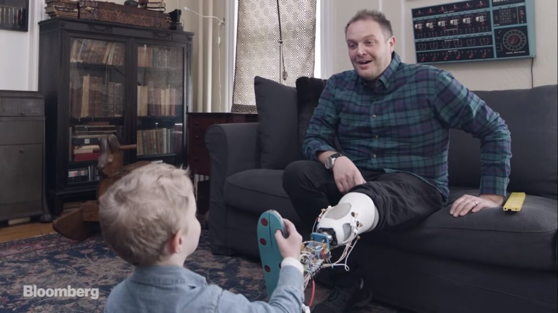 bionic leg